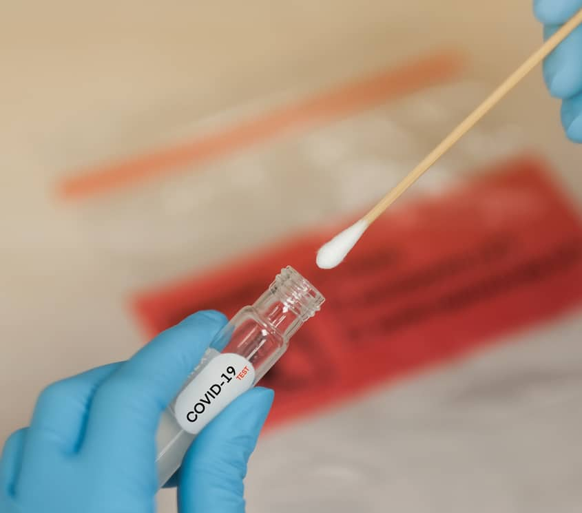 COVID-19 Nasal swab laboratory test in hospital lab